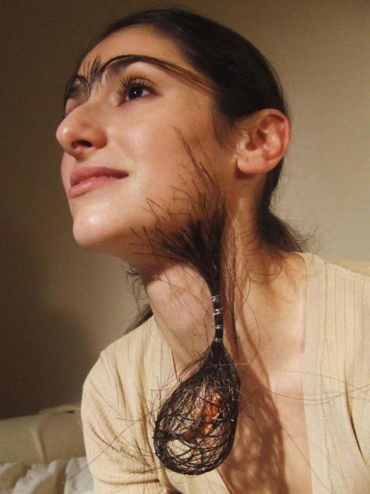 Повышенный рост волос у женщин на лице