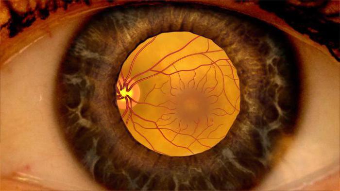 На сколько корректируют зрение линзы