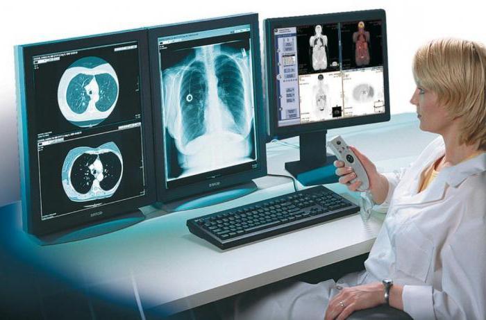 Рентгенография - это метод исследования внутренней структуры объектов при помощи рентгеновских лучей. Отзывы, противопоказания