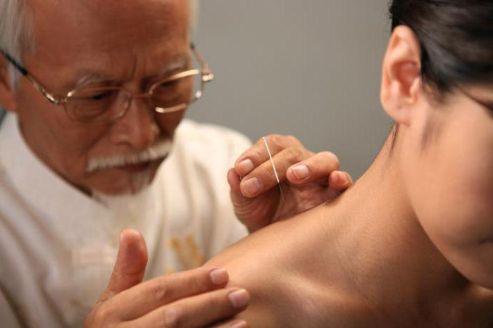 Китайская мануальная терапия