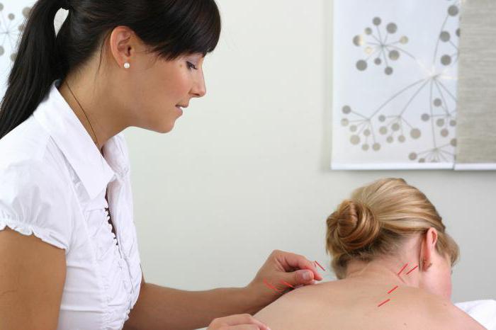 иглоукалывание при грудном остеохондрозе