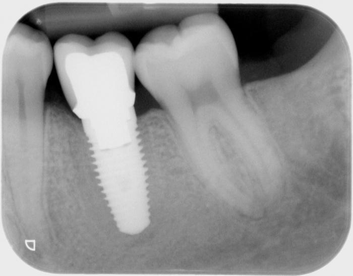 имплантация зубов какие могут быть осложнения