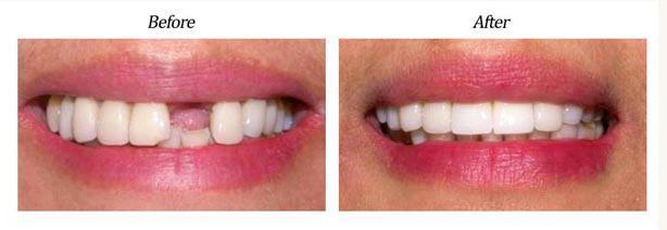 имплантация зубов кому противопоказания
