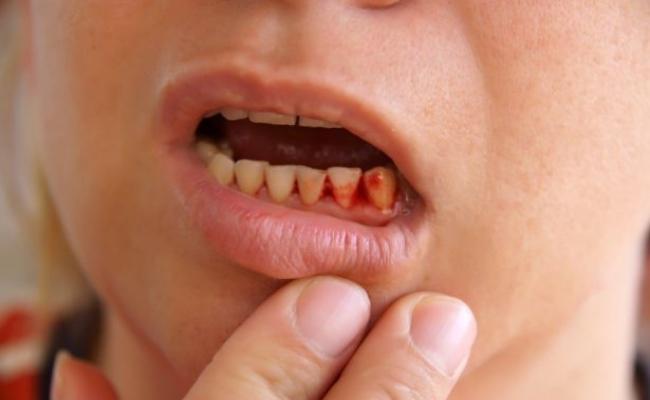 имплантация зубов какие бывают осложнения