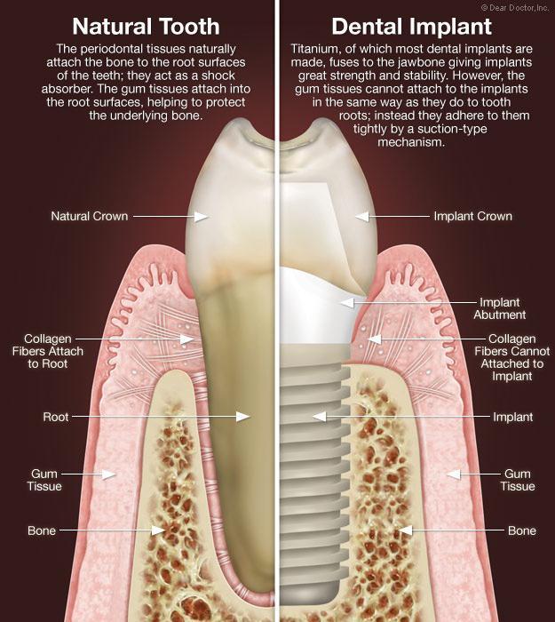имплантация зубов бывают ли осложнения