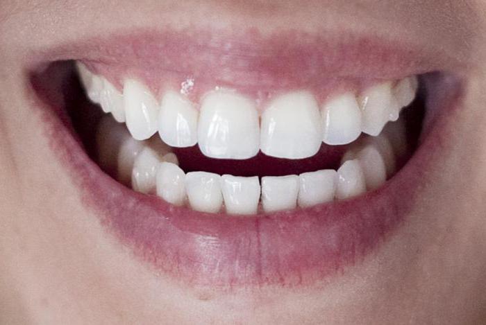 Вкладка в зуб: что это такое, виды, показания