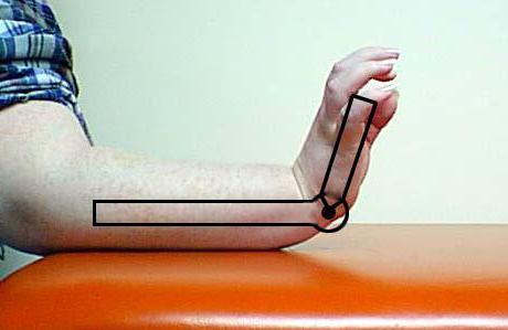 серонегативный артрит диагностика