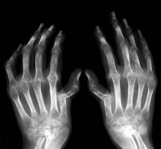 стандарты диагностики ревматоидного артрита
