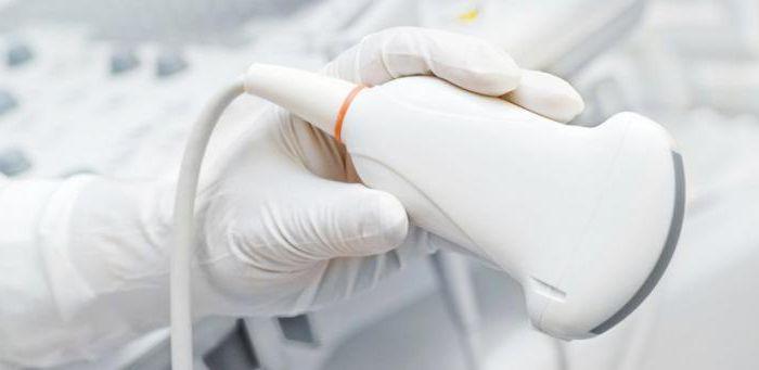 ревматоидный артрит клиника диагностика