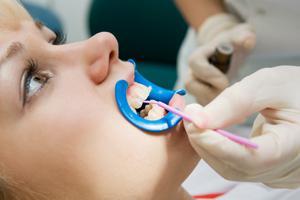 серебрение зубов у детей фото