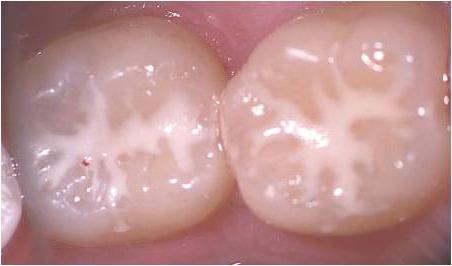 когда серебрение молочных зубов показано и когда нет
