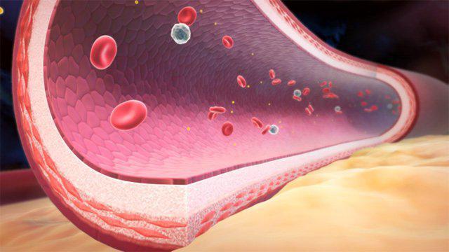 geneticheskie-faktori-riska-gipertonicheskoy-bolezni