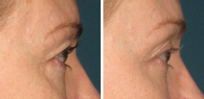 рф лифтинг лица отзывы врачей косметологов