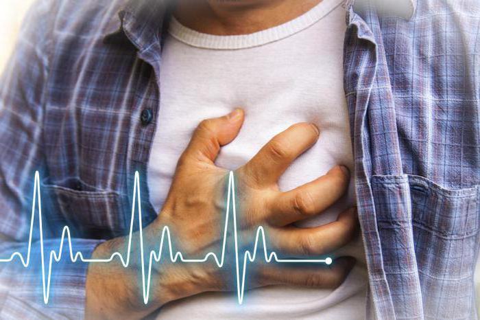 классификация недостаточности кровообращения