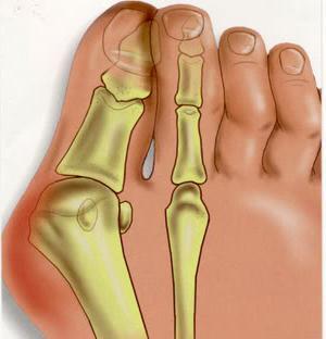 Виды корректоров для пальцев ног в МедОрто