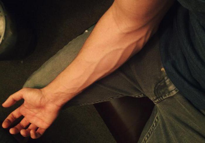 увеличенные вены на руках