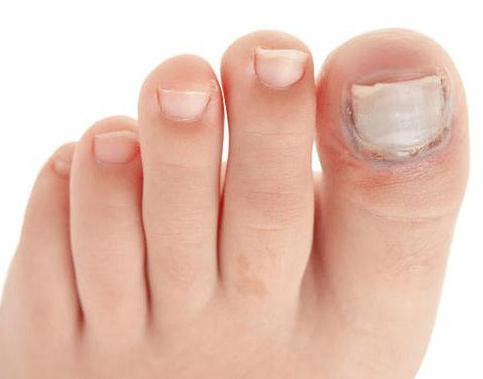 Специалисты по лечению грибка ногтей 16