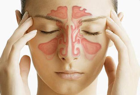 синдром постназального затекания лечение