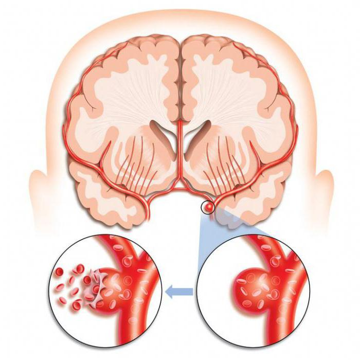 как лечат сосуды головного мозга