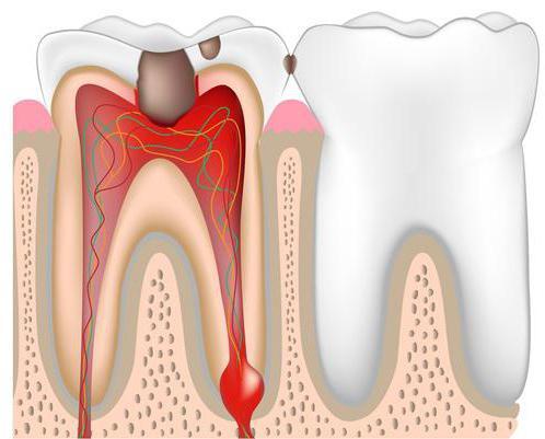 удалили нерв а зуб болит