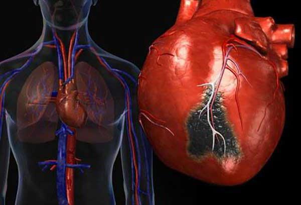 влияние курения на работу сердечно сосудистой системы