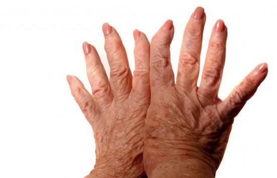 склеродермия признаки заболевания