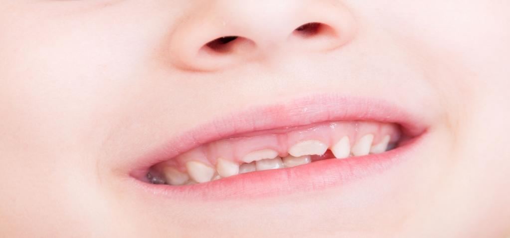 periodontal disease in children photo
