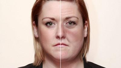 Признаки алкоголизма у женщин на лице фото