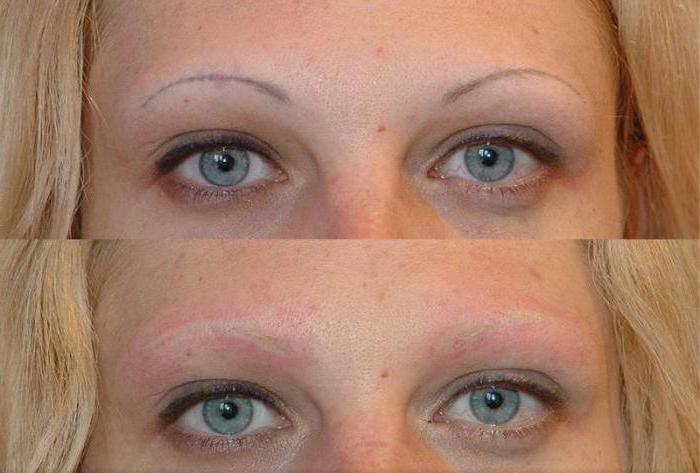 лазерное удаление татуажа бровей фото до и после