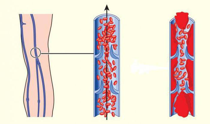Нарушение плодово плацентарного кровотока