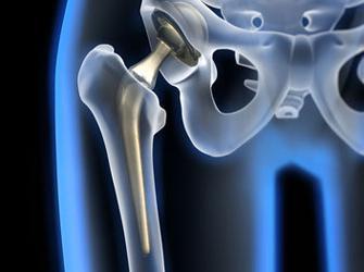 Операция на тазобедренный сустав