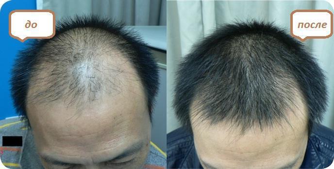 эсвицин для волос отзывы врачей