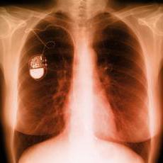 кардиостимулятор сердца противопоказания