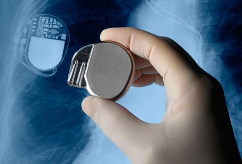 жизнь с кардиостимулятором