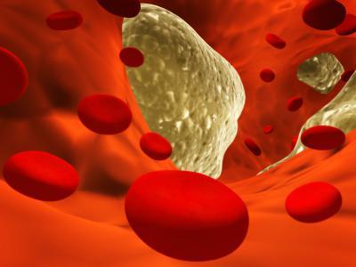 Атеросклероз сердца сколько с ним живут