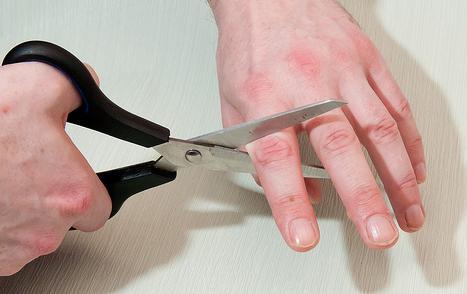 фото отрезанный палец