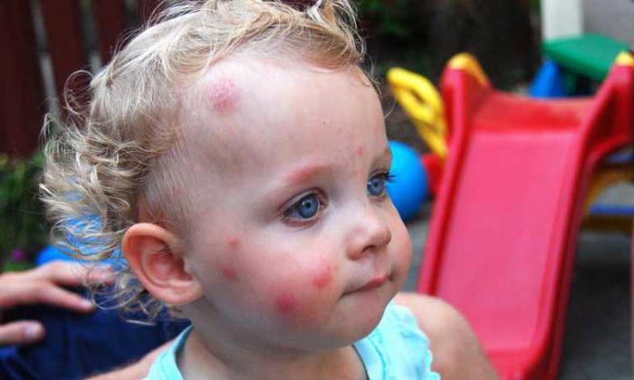 средство борьба с паразитами малышева