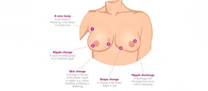 Опухоль в груди злокачестенная как можновілечиться