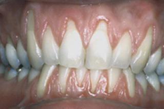 оголилась шейка зуба что делать фото