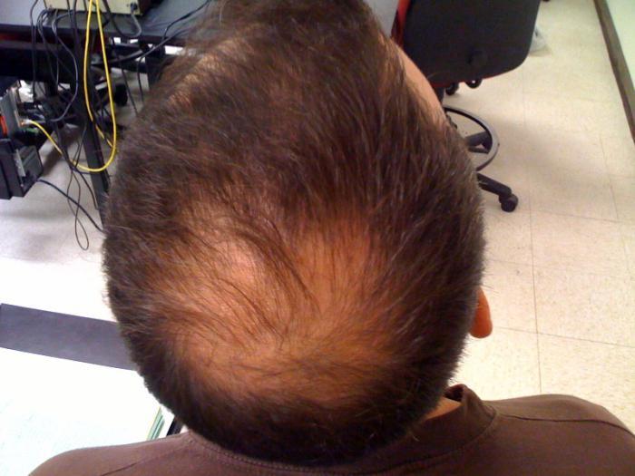 волосы выпадают и стали очень тонкие что делать