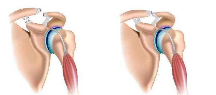 Чем опасен разрыв связок плечевого сустава какие витамины выбрать для суставов для бордоского дога