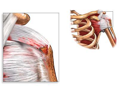 разрыв связок плечевого сустава симптомы