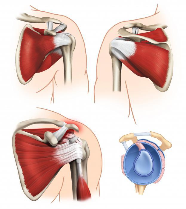 Порваны связки плечевого сустава