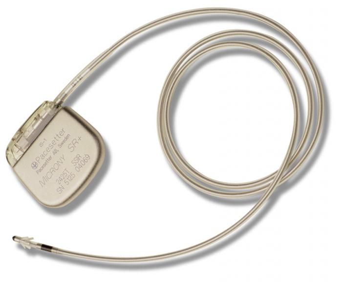 кардиостимулятор сердца воздействие