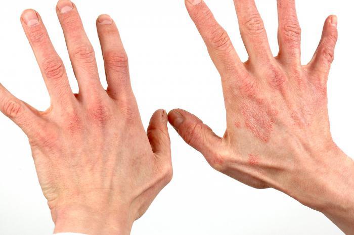 Что такое дерматит? Как вылечить дерматит?