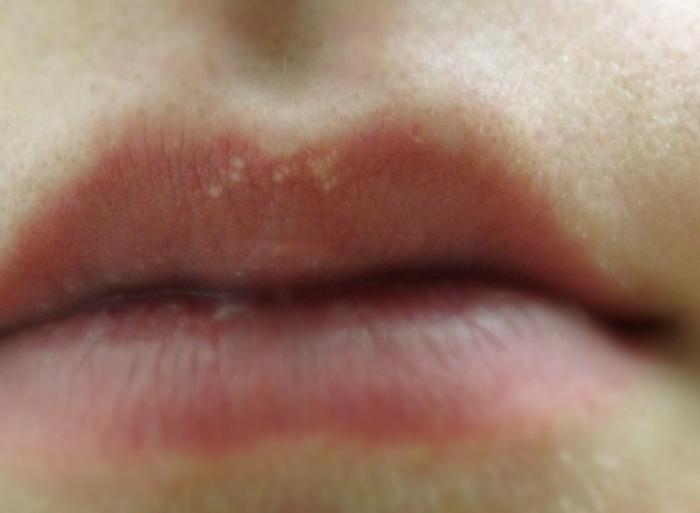на внутренней стороне губы белое пятно.