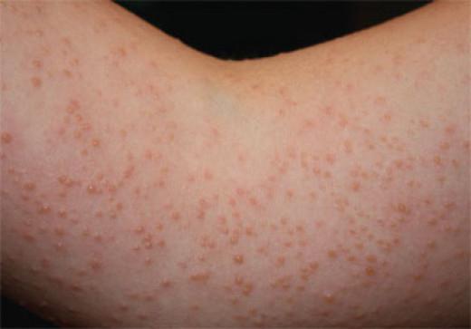 Аллергия весной: виды и симптомы у детей и взрослых картинки