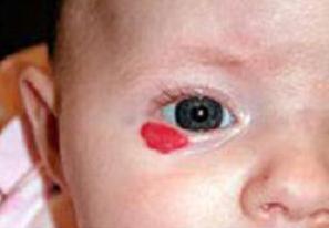 Капиллярная гемангиома у детей: симптомы и лечение
