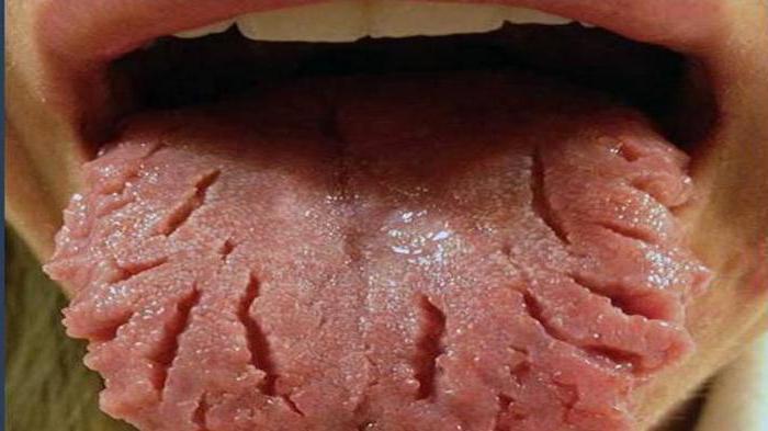отпечатки зубов на языке причины