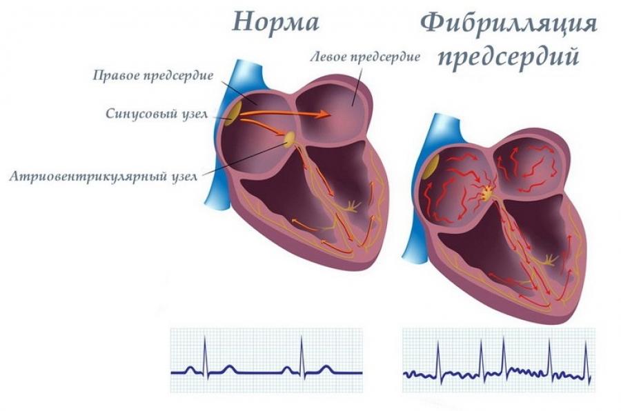 Фибрилляции желудочков